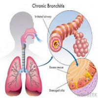 All respiratory disorder