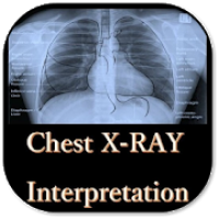 Chest X-Ray Interpretation - A basic guide
